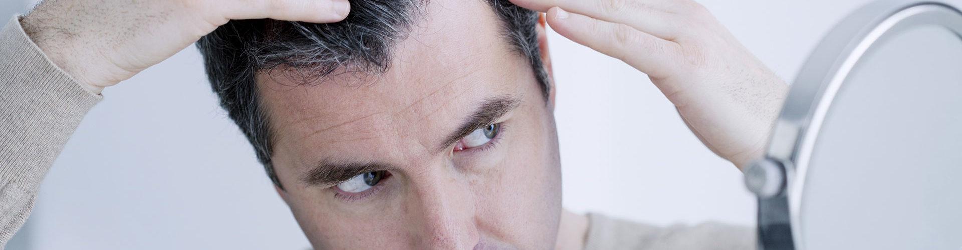 La perte de cheveux due au stress