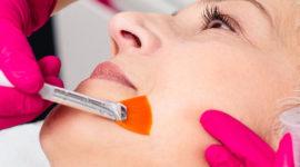 Peeling TCA : Le peeling moyen