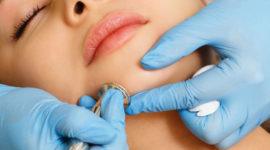 Hydrafacial et acné : quelle efficacité ?