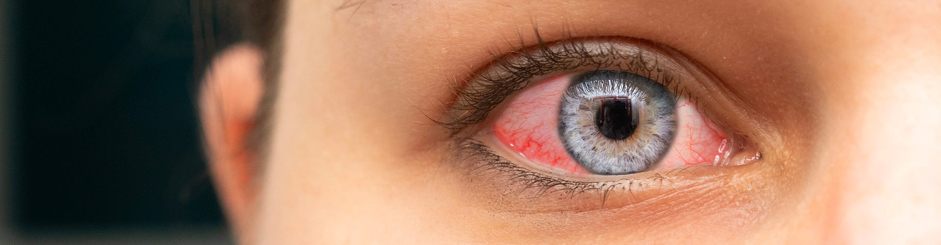 Yeux rouges, quand consulter ?