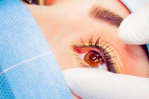 Augmentation des opérations de chirurgie réfractive depuis le port du masque obligatoire